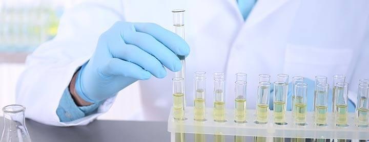 soigner chlamydia analyse d'urine